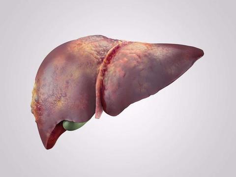 """不抽烟喝酒,为何脂肪肝""""缠身""""?医生:4件事是元凶,伤肝不浅"""