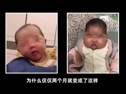 """""""大头娃娃""""又来了,5月女婴深受其害:选宝宝面霜4步骤不可省"""