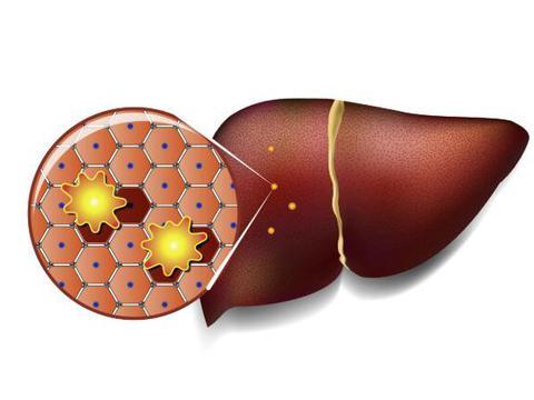 """脂肪肝是吃出来的?医生:饮食坚持""""三多三少"""",或给肝脏减减肥"""