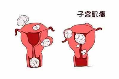 女性若想预防子宫肌瘤,注意这5点,让子宫更干净
