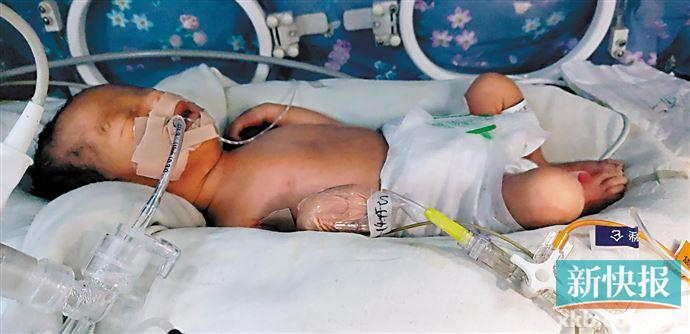 落难妈妈求助 急筹医疗费保早产女婴性命