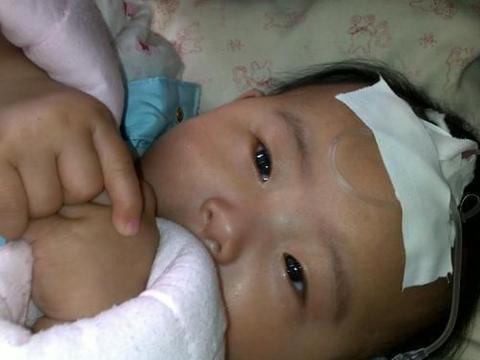 1岁半女娃肠坏死,母亲痛哭,儿医:奶粉要会冲,3种辅食不要喂