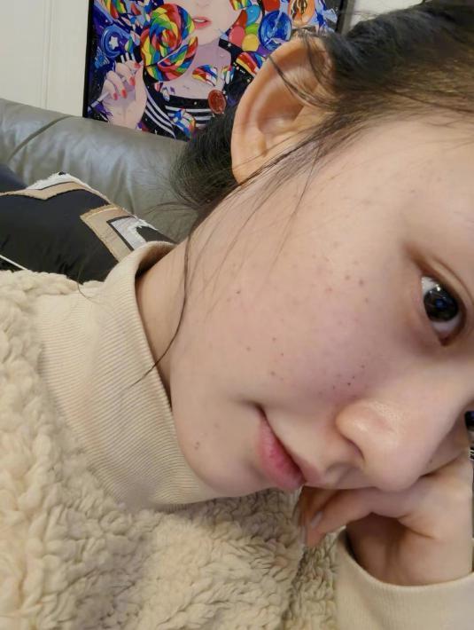 25岁星女郎林允自己做医美,满脸针眼好吓人,网友:看着都疼