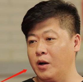贺树峰为什么越来越胖 贺树峰变胖是得什么病了吗
