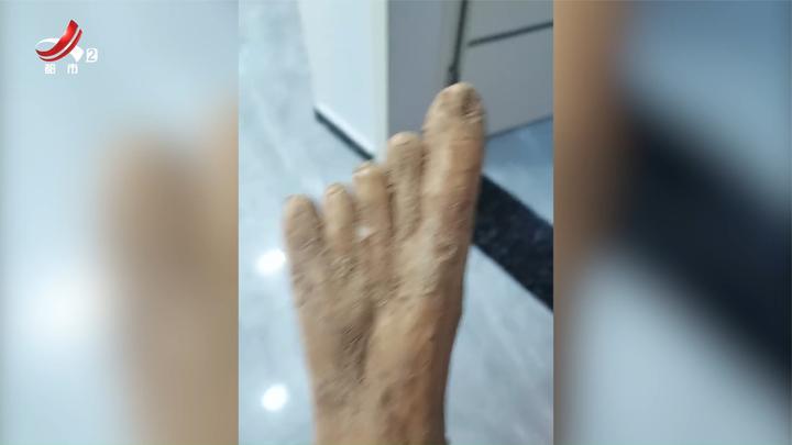 买的山药像极了人脚,网友:大拇指还有点灰指甲