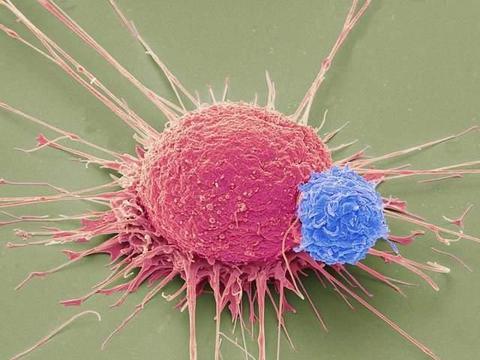 预防癌症的这5类食物,你都在吃吗?医生也推荐