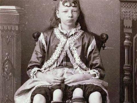她先天有四条腿,为养家被送去杂技团赚钱,死后墓地被盖上混凝土