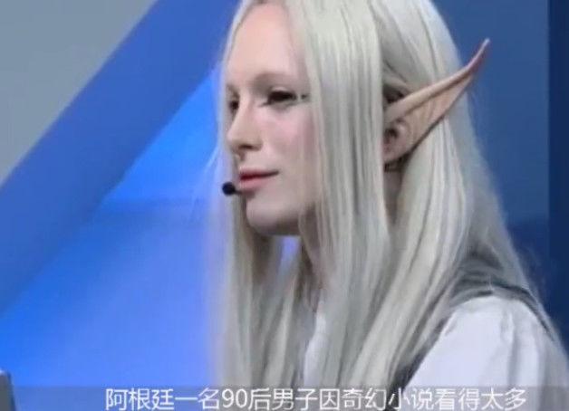 男子花费22万整容成精灵王子,网友:帅呆了!