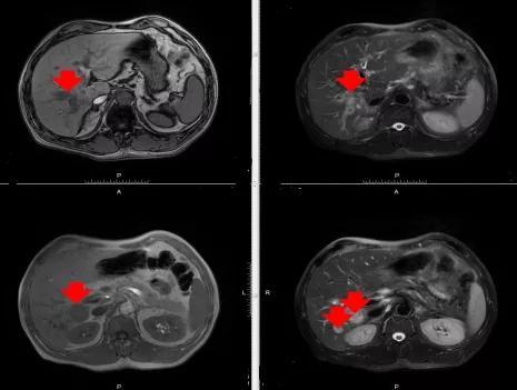 晚期肝癌伴黄疸,多措并举带来生存获益