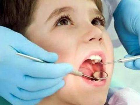 """不想孩子从小满嘴长""""小黑牙"""",别让孩子自己刷牙,毫无保护效果"""