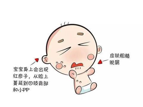 杏璞霜:婴儿湿疹总不好 症状类型 你真的了解吗