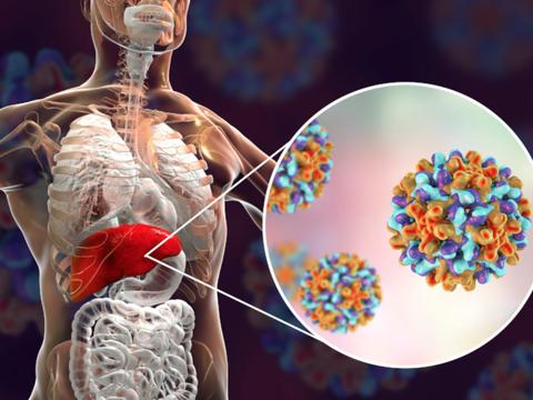 乙肝进入抑制剂,早期设计思路,被认为可有效针对HBV