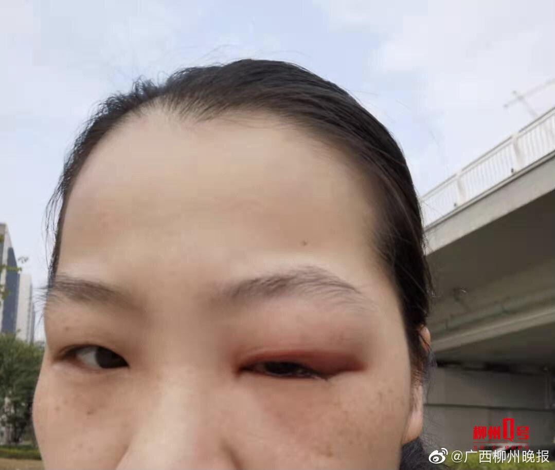 种睫毛眼睛肿胀住院 ,向店家索赔无果,柳州这位美女后悔莫及……