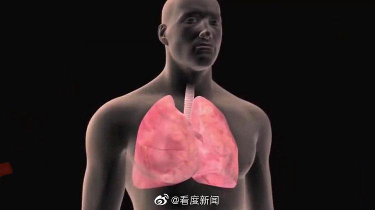 全国人大代表建议肺癌筛查进医保 高危人群如何做筛查?