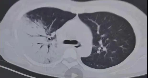 永州市第四人民医院治愈一例鹦鹉热衣原体感染患者