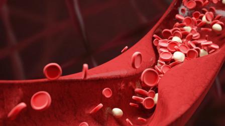 血液黏稠?别慌!常吃这5种食物,能净化血液,让血管更畅通