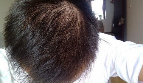 肝脏功能受损,身体会有这4种表现,头发容易脱落也是其中之一