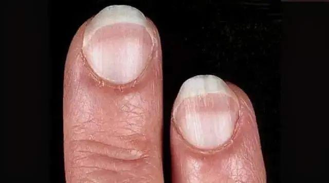 肝脏不好的人,指甲有3处变化,一个没有,肝脏还算健康!