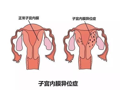 子宫内膜异位症:一种会哭泣的痛…合肥喜得儿不孕不育医院
