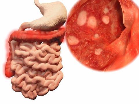 医生再三叮嘱:大肠癌早期,身体一般有4种征兆,劝你别知道太晚