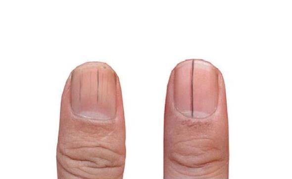 指甲上的竖纹,或是身体发出的求救信号,4种情况了解一下!