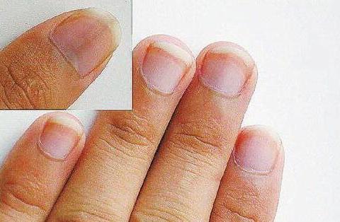 指甲上的月牙是什么?月牙突然消失了什么情况?医生说出了答案!
