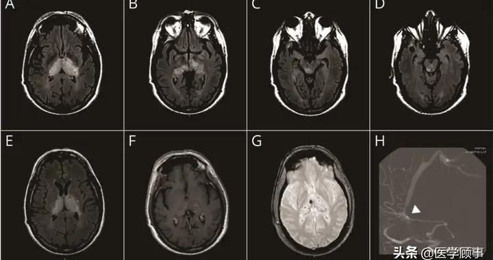 双侧丘脑T2高信号可能是什么病?