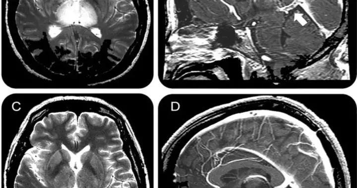 Neurology病例:Galen静脉血栓形成的可逆性双侧丘脑病变