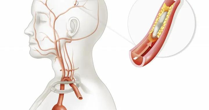 大脑深静脉血栓-双侧丘脑对称病变影像诊断