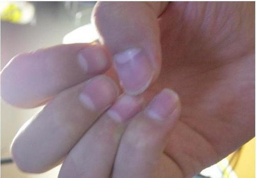 指甲上的月牙越多,身体越好吗?很多人都想错了,不妨了解一下吧