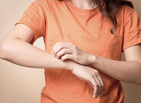 湿疹是怎么引起的怎么治疗能去根