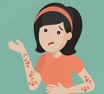 湿疹八大过敏源有哪些?来了解下吧!