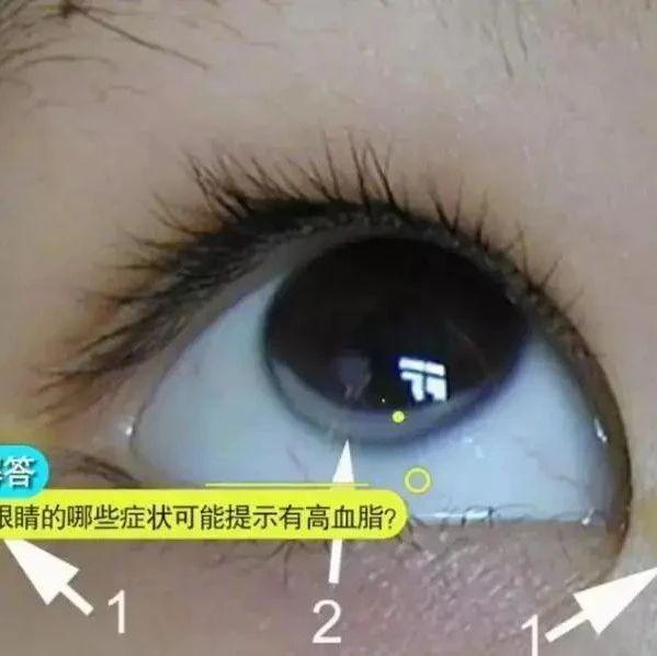 """眼睛出现3个信号,可能是血脂在""""报警""""!千万别忽视"""