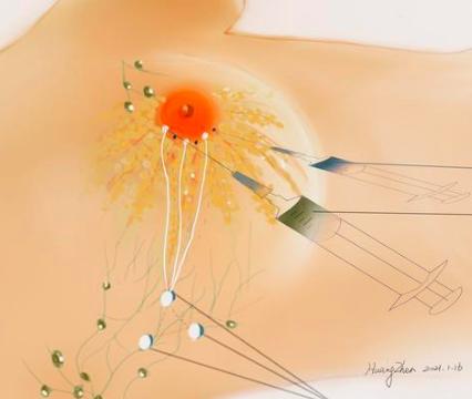 前哨淋巴结的转移灶类型与相应处理