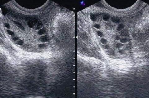 女子闭经1年不孕症,直言自己奶奶一辈子没来过月经,有4个儿子