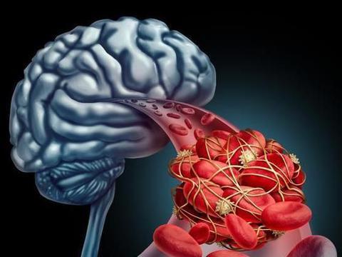 预防脑梗,趁早远离2物,心脑血管会感谢你