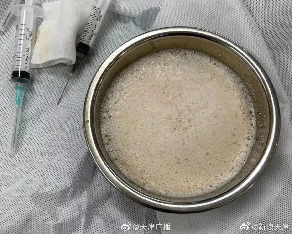 天津天津14岁女孩心脏中抽出牛奶状积液