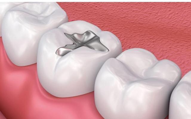 牙医最怕的几件事,你们知道吗?