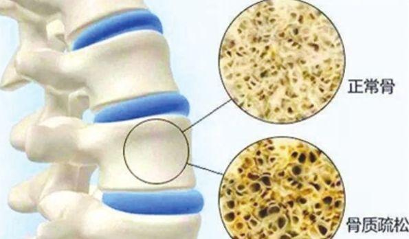 """医生:身体若出现3种异常,或许骨质疏松""""临门"""",平时要多注意"""