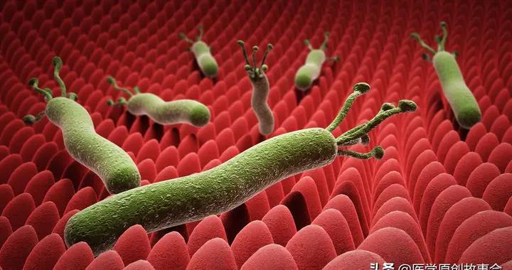 幽门螺杆菌不是突然到来,感染幽门螺杆菌的人,晚上有四个共同点