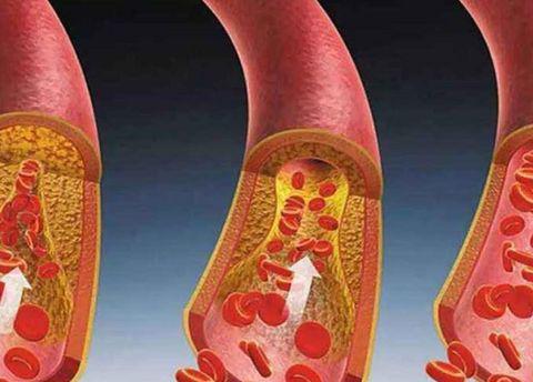 """这4种食物是血管""""清洁工"""",不是芹菜,建议偏高的人或可常吃"""