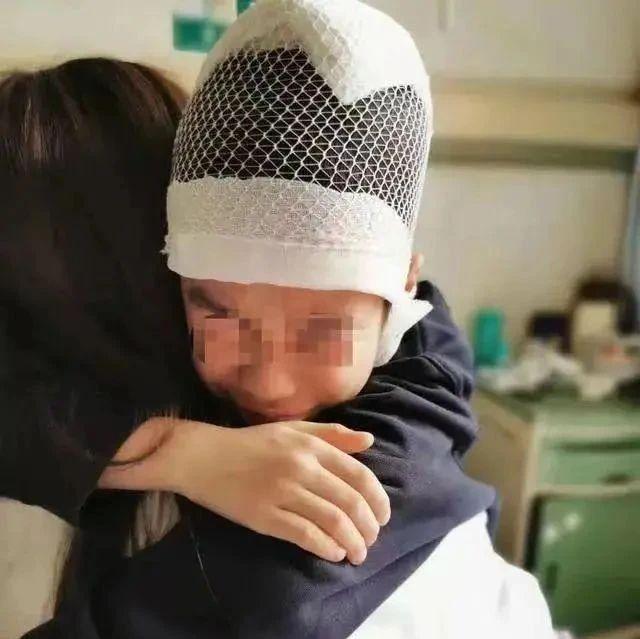 9岁小学生被老师揪头发致皮骨分离,警方通报!