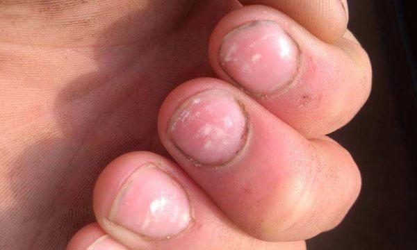 指甲上有竖纹是怎么回事?是不是代表身体出现了问题?听医生讲
