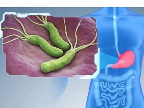 有胃病多吃这1物,能够消除幽门螺杆菌