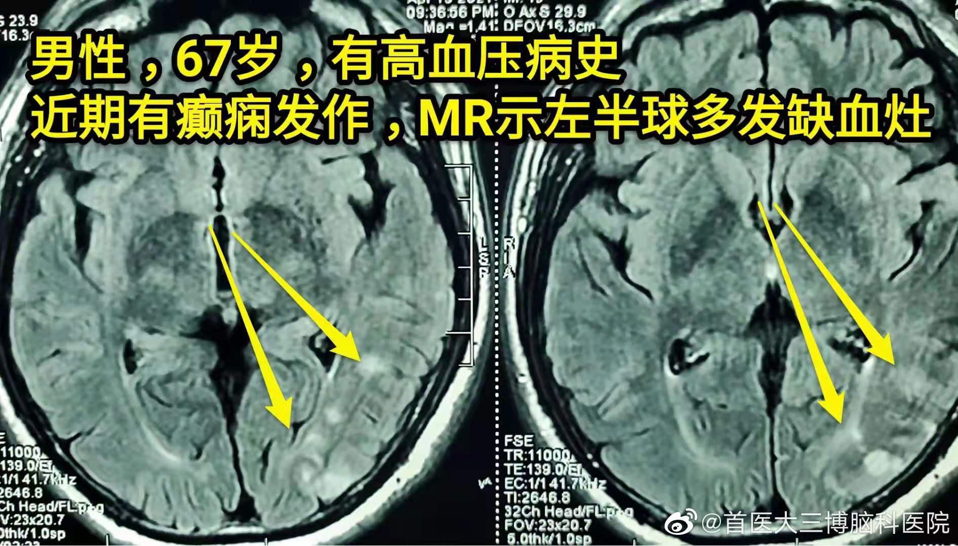 摘自我院神经外科吴斌副教授日志: 颈动脉内膜剥脱术 67岁男性……