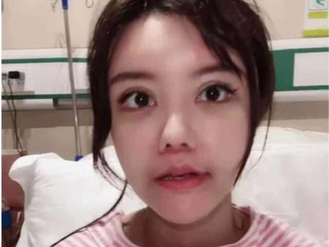 韩安冉展示整容效果,蓬头垢面疤痕明显,为博关注下手术就拍视频