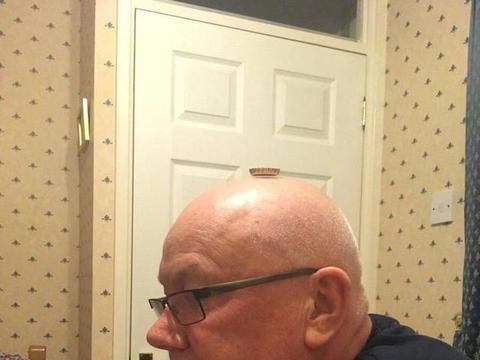 男子为了立证自己没有真正的秃顶,在头上放了个啤酒盖