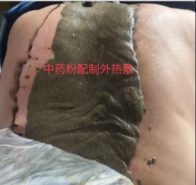 河南周口中医邵淼用事实告诉你,强直性脊柱炎中药是可以治愈的!