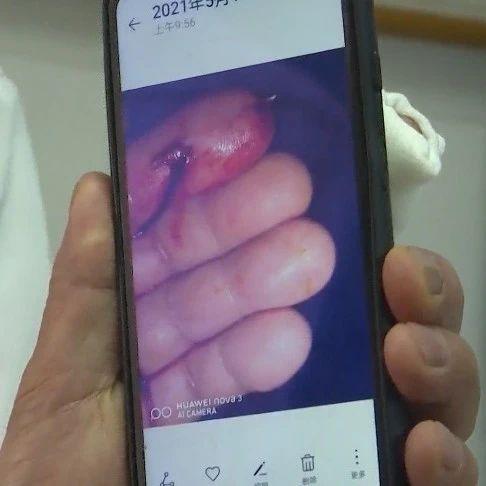鱼刺扎穿手指就医,处理这种鱼需警惕!