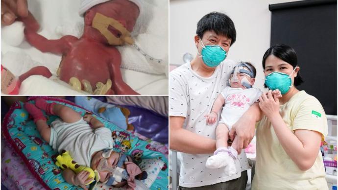 世界最小的早产婴儿出院
